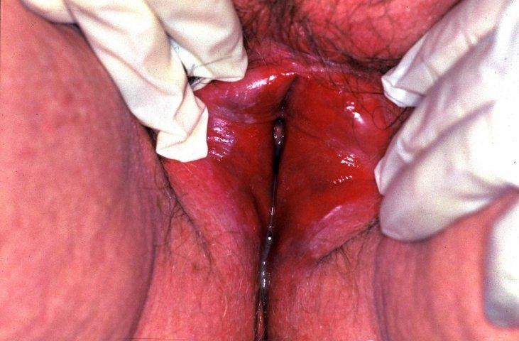 sex vejle vagina